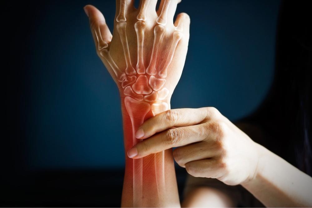 Des clous à oeillets ? Riche en manganèse, bon pour l'ostéoporose.