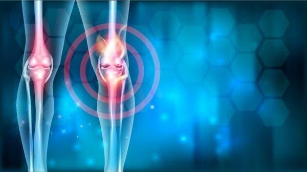 Un nouveau mécanisme de rajeunissement cellulaire pourrait renverser l'arthrose