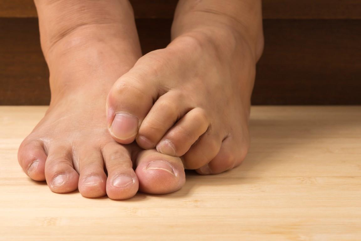 soulager naturellement la neuropathie des pieds