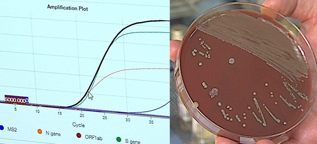 Virus et bactéries, deux monstres microscopiques qui nous étouffent avec une pneumonie