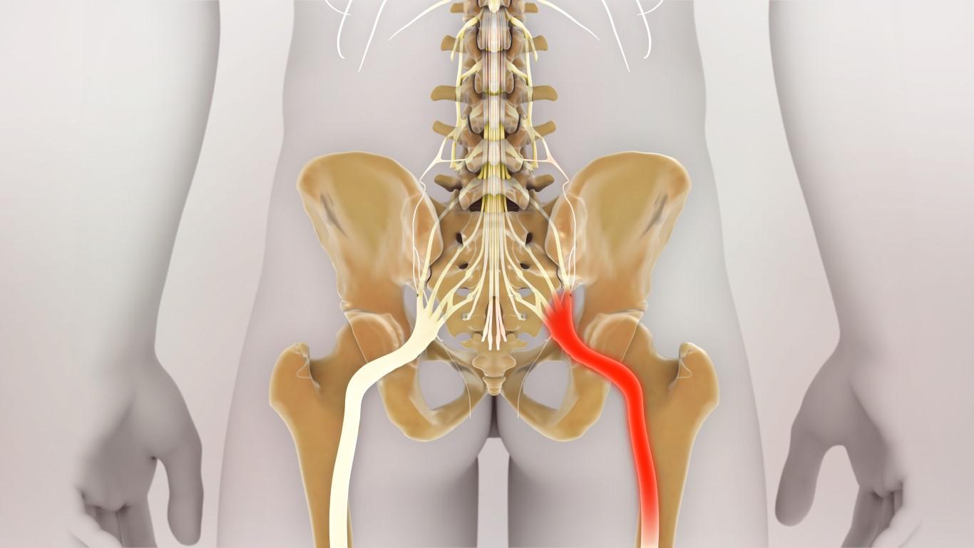 nerf sciatique