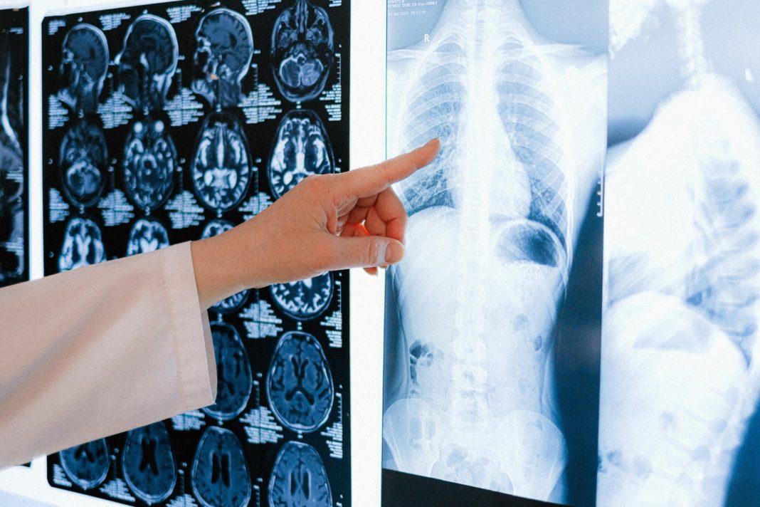 Le défi du cancer du poumon : un meilleur diagnostic et un traitement précoce